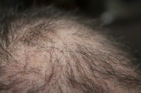 Practical Solutions That Will Help You Combat Hair Loss